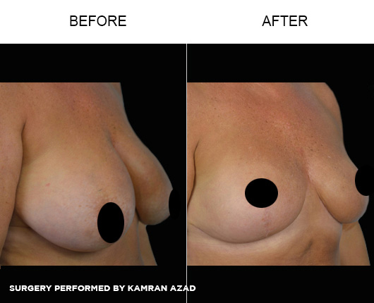 breastlift1-4