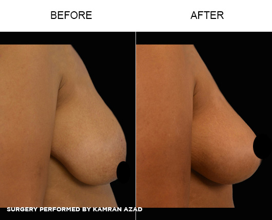 breastlift3-3