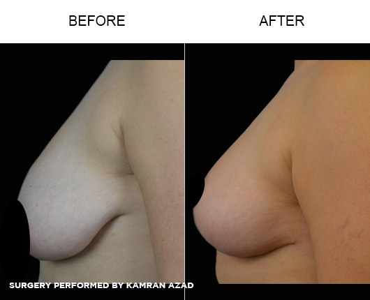 breastlift4-3