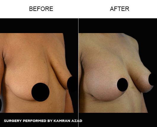 breastlift5-2