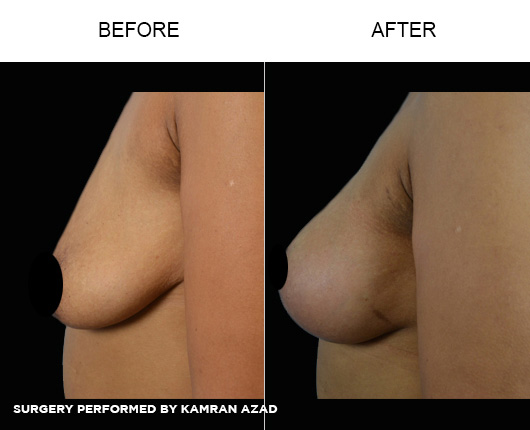 breastlift5-3
