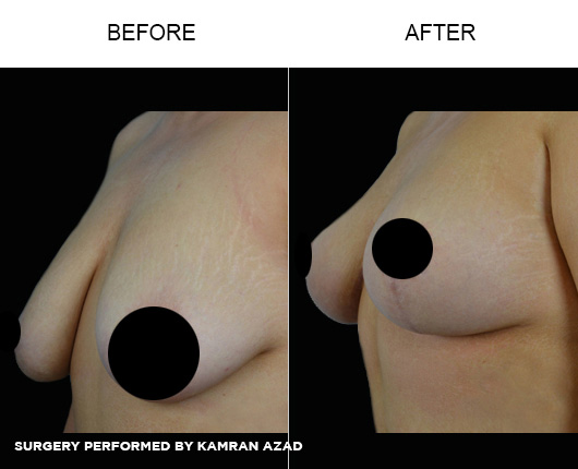 breastlift6-1