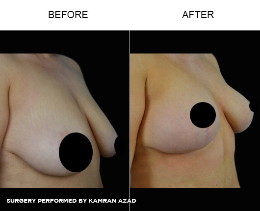 breastlift6-3