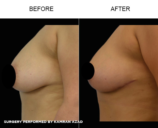 breastlift7-1