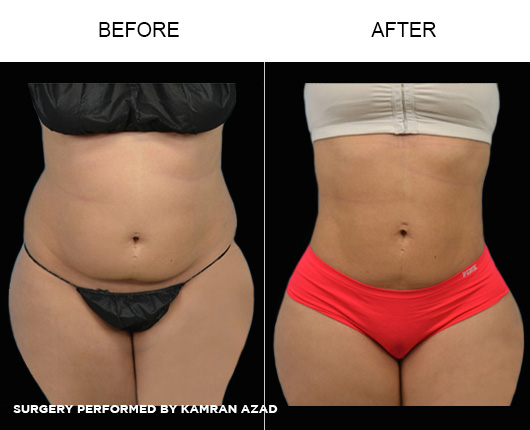 liposuction01-1