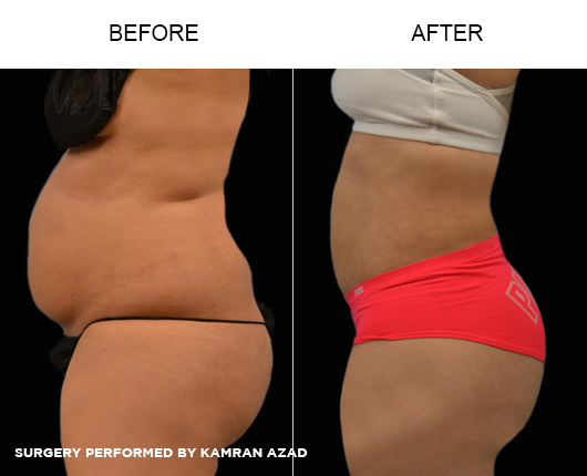 liposuction01-4