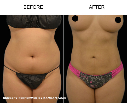 liposuction02-1