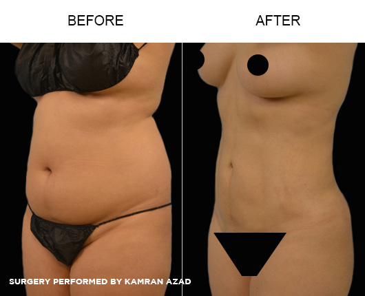 liposuction02-2