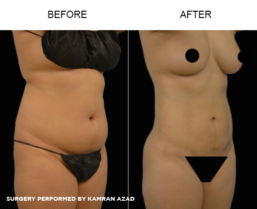 liposuction02-3