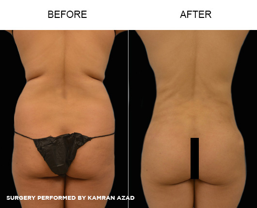 liposuction02-4