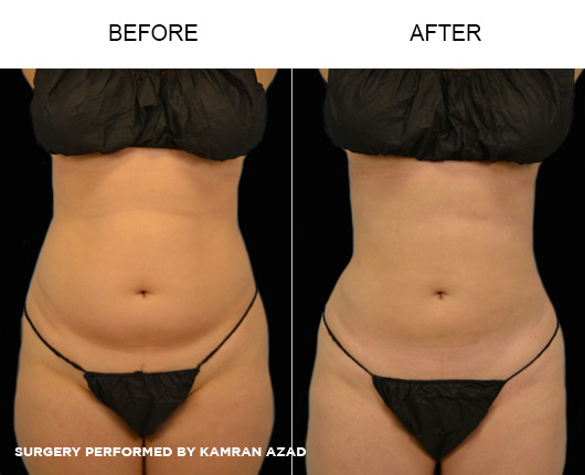 liposuction03-1