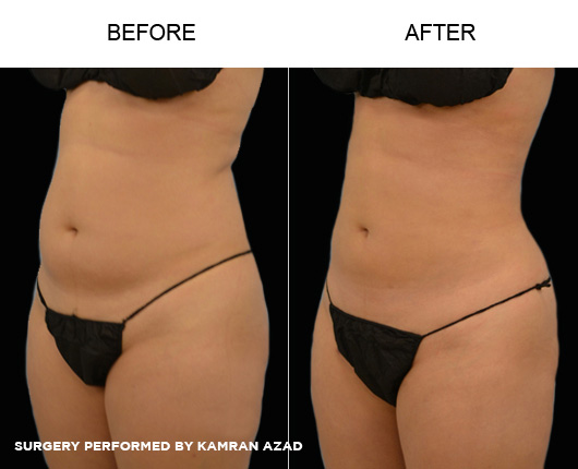 liposuction03-2