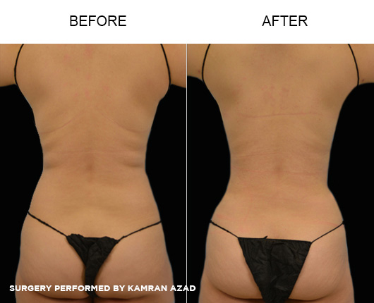 liposuction03-3