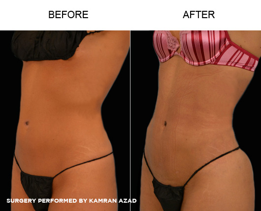 liposuction04-2