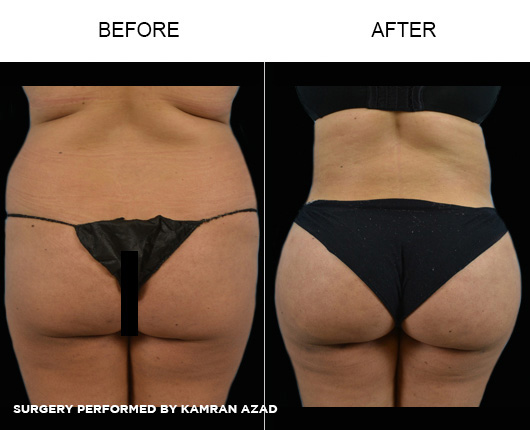 liposuction05-3