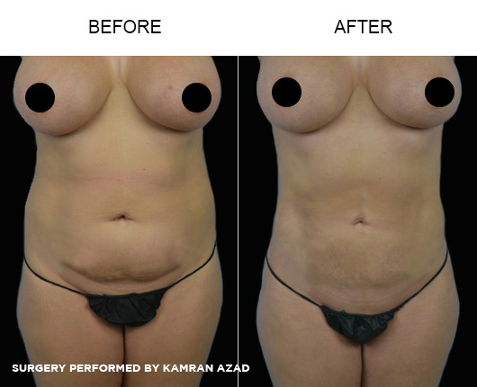 liposuction06-1