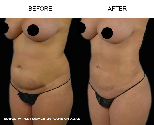 liposuction06-2