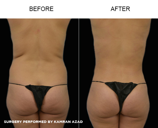 liposuction06-3