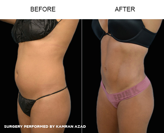 liposuction07-3