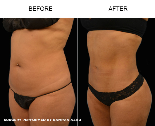 liposuction08-1