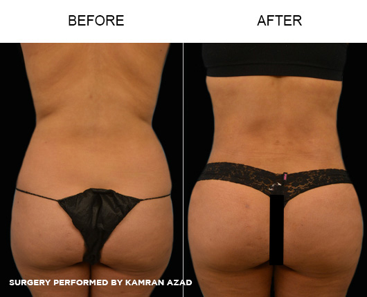 liposuction08-3