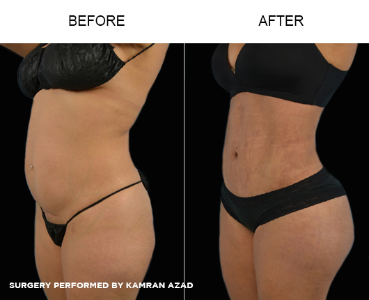 liposuction11-2