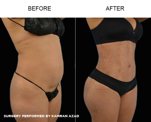 liposuction11-3