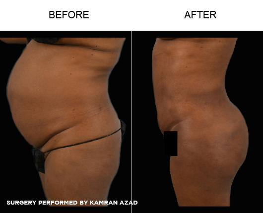 liposuction12-3