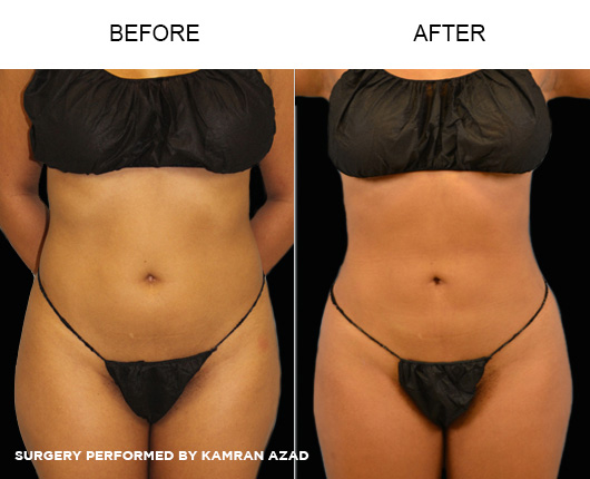 liposuction13-1
