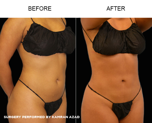 liposuction13-2