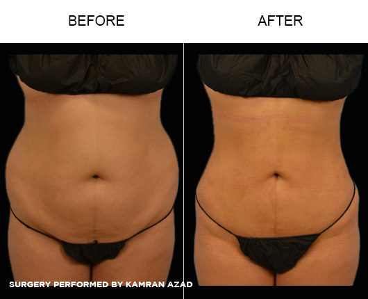 liposuction14-1