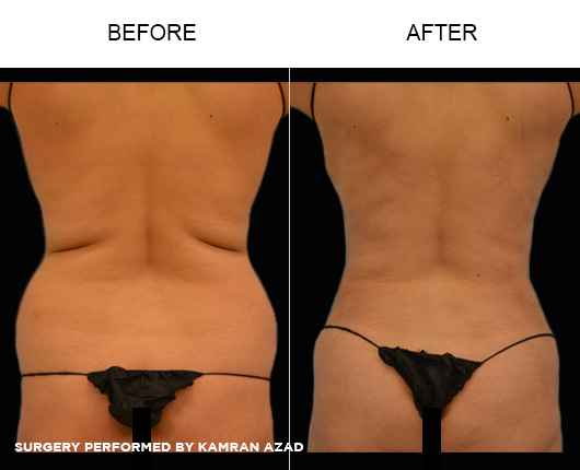 liposuction14-2