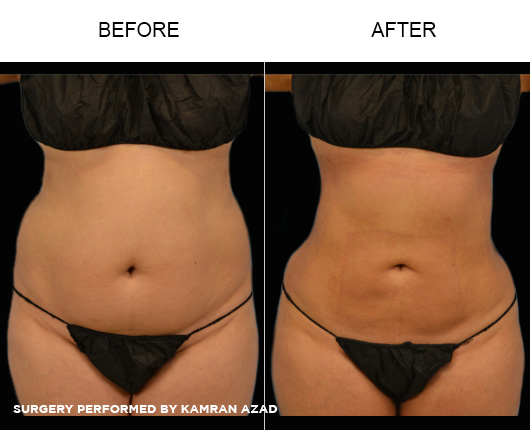liposuction15-1
