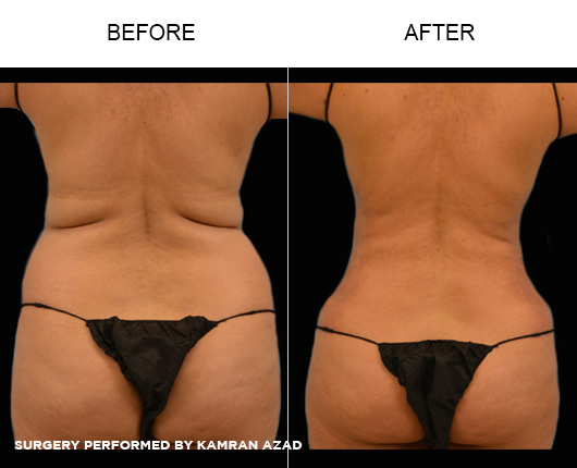 liposuction15-2