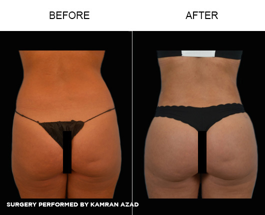 liposuction16-2