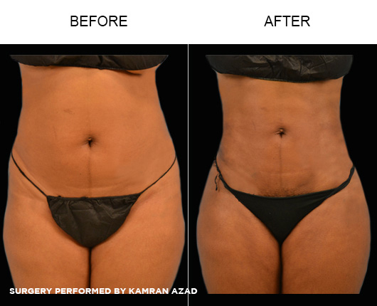 liposuction18-1