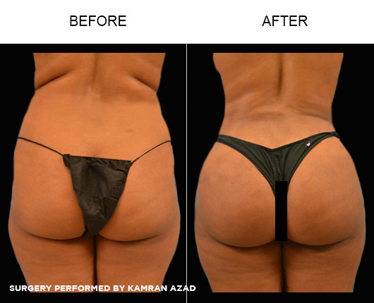 liposuction18-2