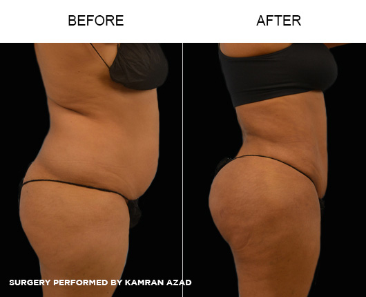 liposuction19-2