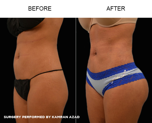 liposuction20-1