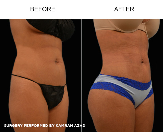 liposuction20-2