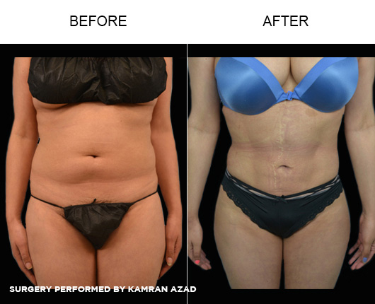 liposuction21-1