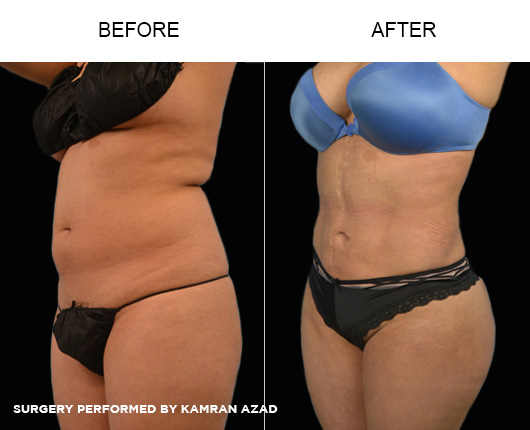 liposuction21-2