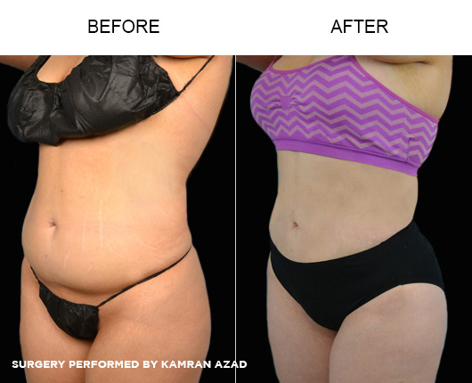 liposuction22-2
