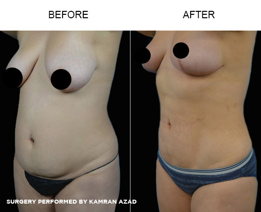 liposuction23-1