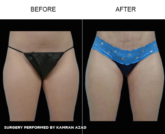 liposuction24-1