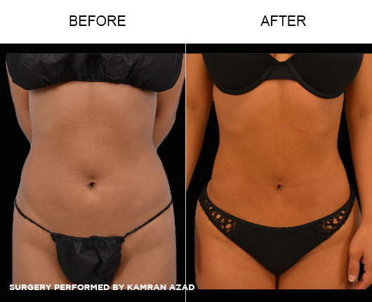 liposuction25-1