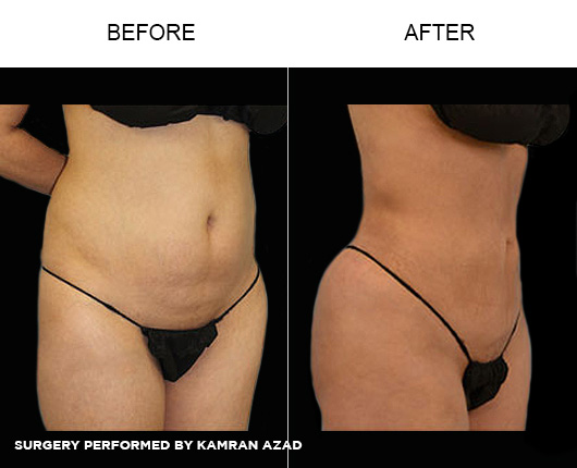 liposuction27-1