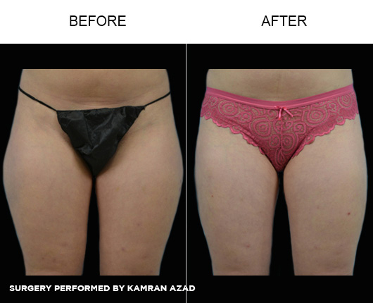 liposuction28-1