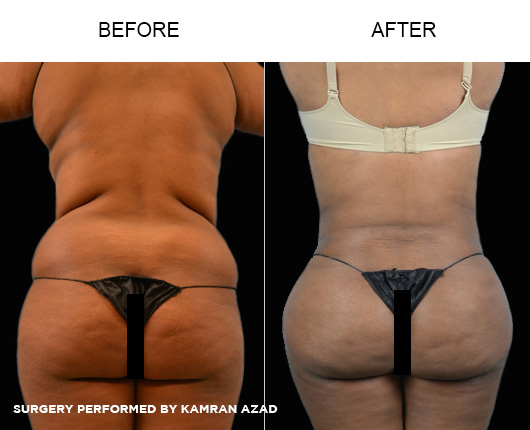 liposuction28-2