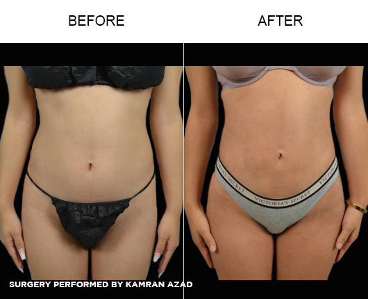 liposuction28-5